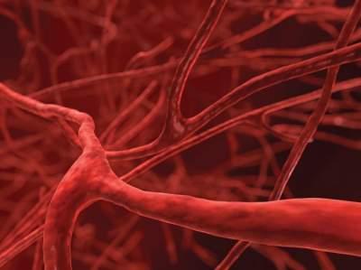 Медики нашли неожиданную причину болезней сосудов