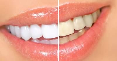 Простые способы самостоятельно отбелить зубы
