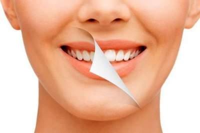 Отбеливание зубов: стоматолог поделился советами