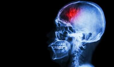 Ученые назвали простой способ защиты от инсультов