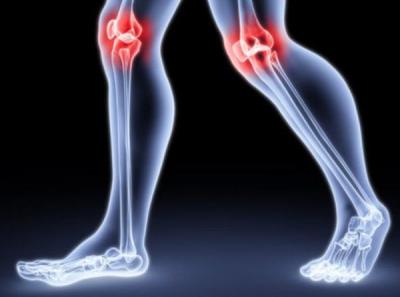 Врачи поделились советами для профилактики заболеваний суставов